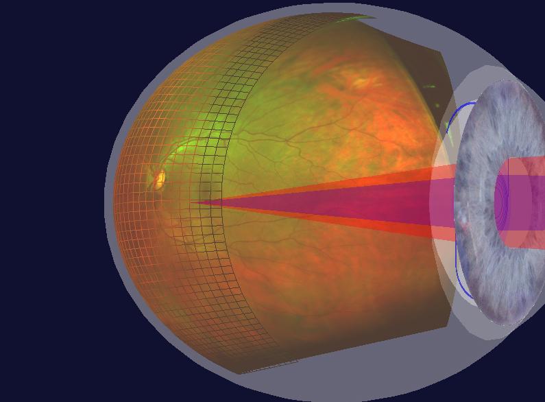 Retinal Imaging optomap 3D eye services